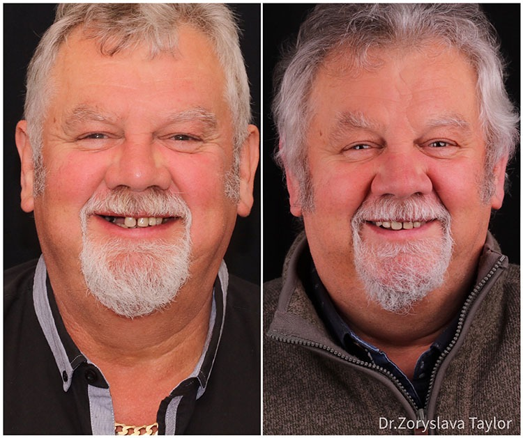 towngate dental practice before and after