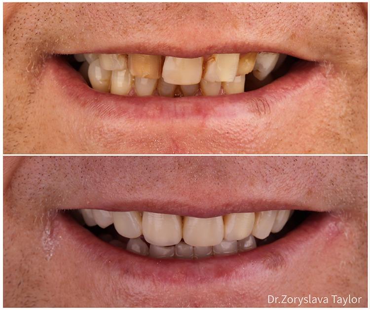 composite bonding towngate dental practice