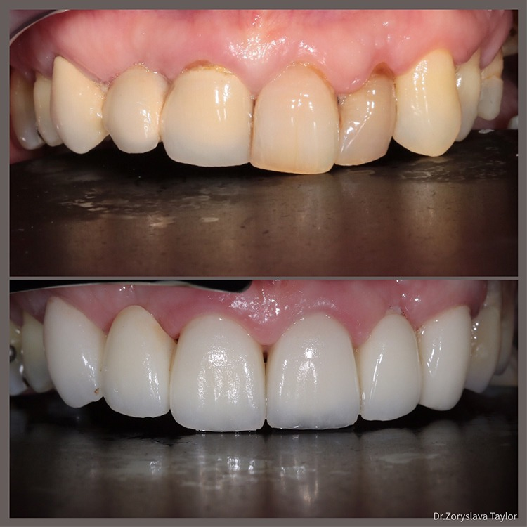 Towngate dental practice crowns