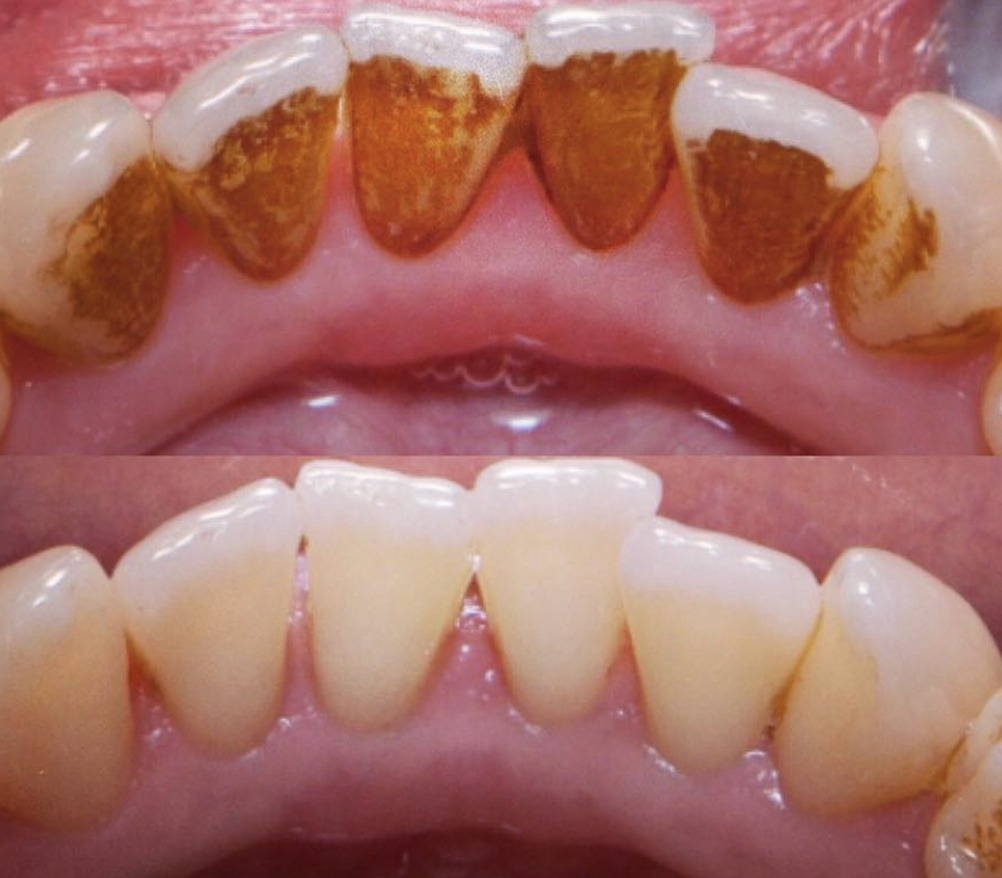 towngate dental practice hygienist