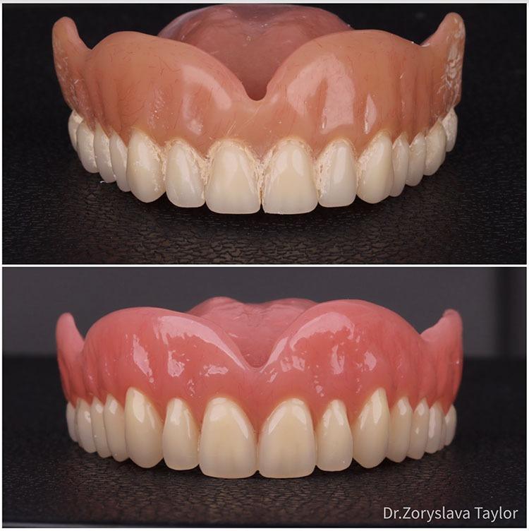 towngate dental practice dentures