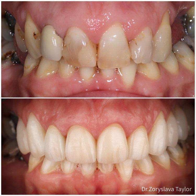towngate dental practice veneers