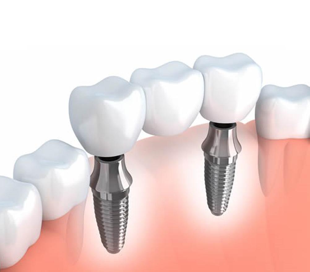 Towngate dental practice dental implants
