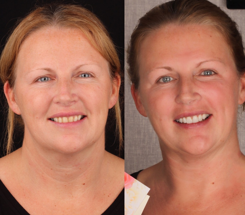 before and after towngate dental practice