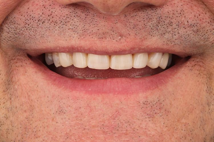 towngate dental practice composite bonding