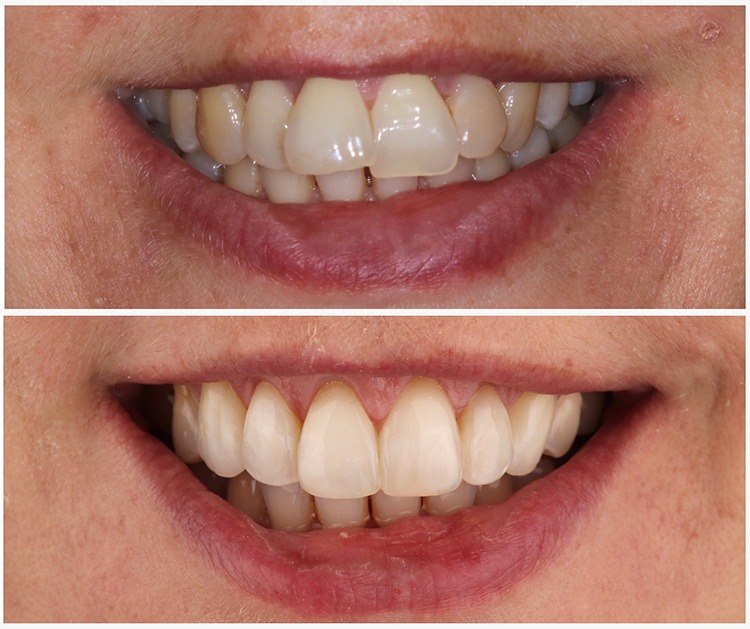 towngate dental practice tooth alignment