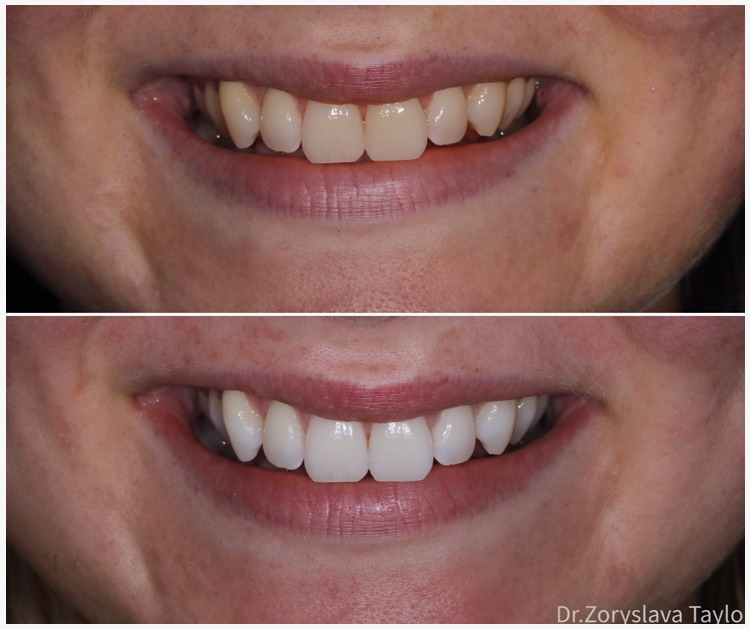 towngate dental practice tooth whitening